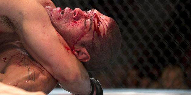 Apesar de todo o sangue, o MMA é mais seguro que o