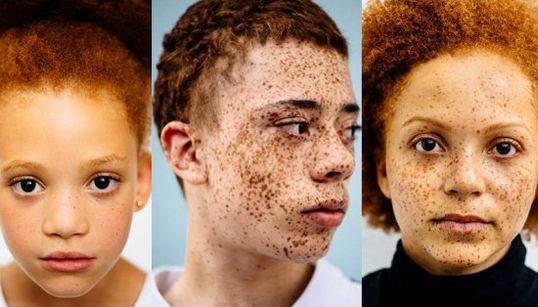 FOTOS: Os retratos que comprovam a beleza da diversidade entre os