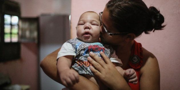RECIFE, BRAZIL - JANUARY 29: David Henrique Ferreira, 5 months, who was born with microcephaly, is kissed...