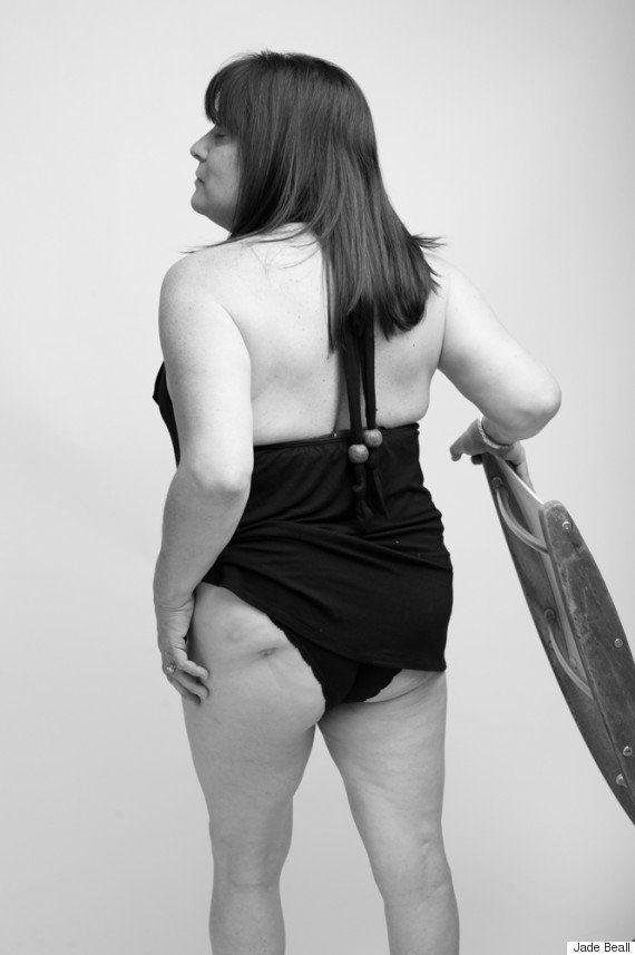 5 maneiras de ser ativista da aceitação corporal e não se abalar com os