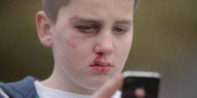 ASSISTA: Garoto de 13 anos mostra como o bullying virtual causa feridas