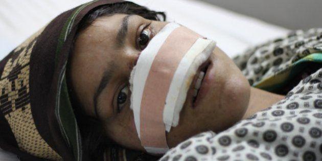 Conheça a afegã que se recusa a ficar calada depois de ter o nariz cortado pelo