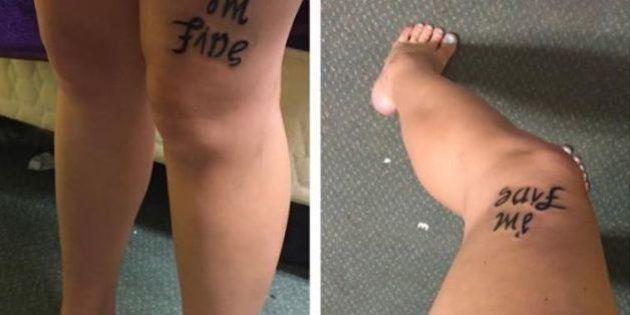 Mulher faz tatuagem para falar sobre luta contra a