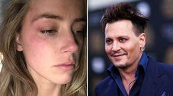 Amber Heard alega violência doméstica e pede ordem de restrição contra Johnny