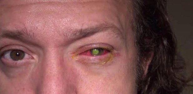 Homem fica cego de um olho depois de dormir de lente de contato (IMAGENS