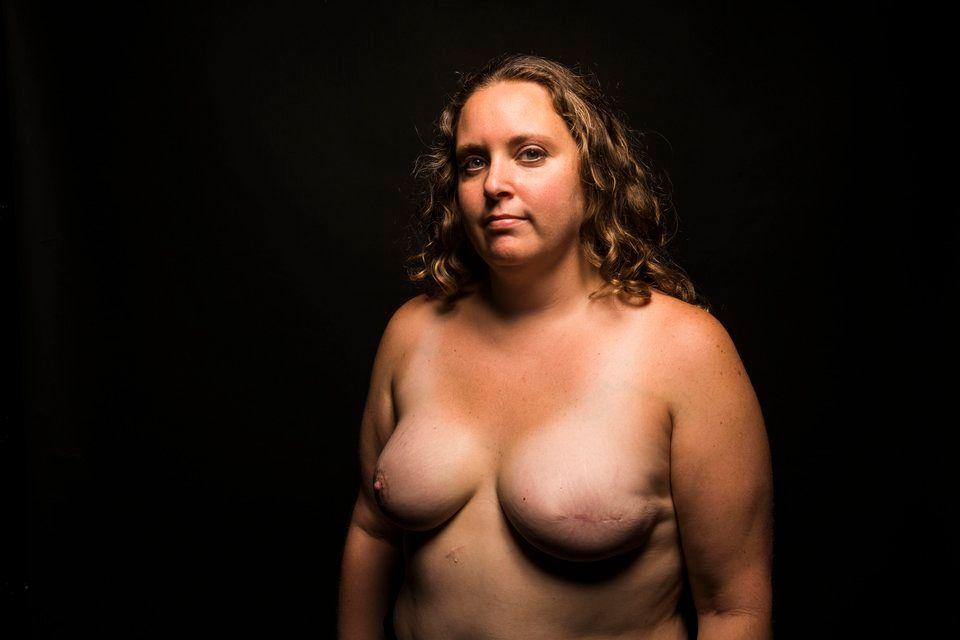 24 mulheres mostram suas cicatrizes para revelar a beleza nas
