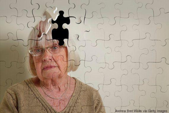 Memórias perdidas por Alzheimer podem ser recuperadas, sugere