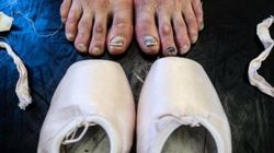 'Toda bailarina tem': 15 fotos surpreendentes mostram os ossos do