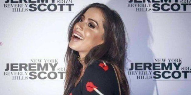 Anitta quebra o silêncio sobre preenchimento nos lábios em desabafo no