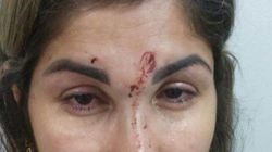 A história desta mãe agredida é um alerta para denunciarmos a violência