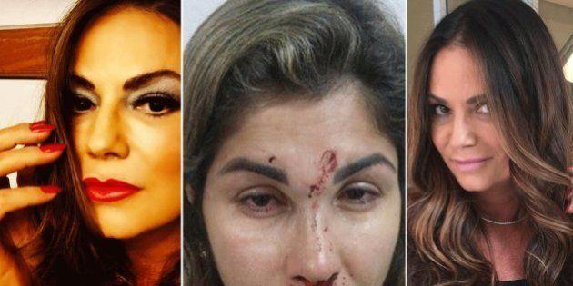 A violência doméstica está perto de você e independe de renda ou