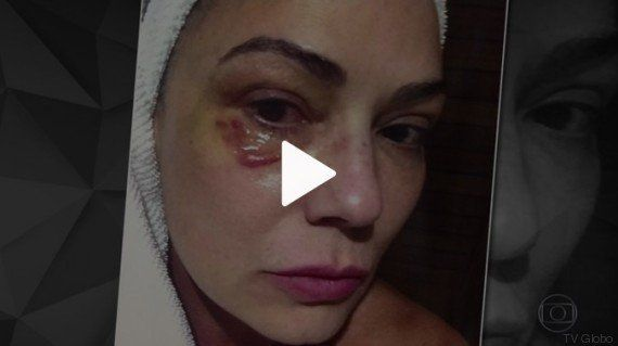 Lírio Parisotto tenta justificar violência contra Luiza Brunet: 'Ela é muito