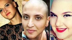 Estas mulheres contam como foi ter câncer de mama antes dos 30