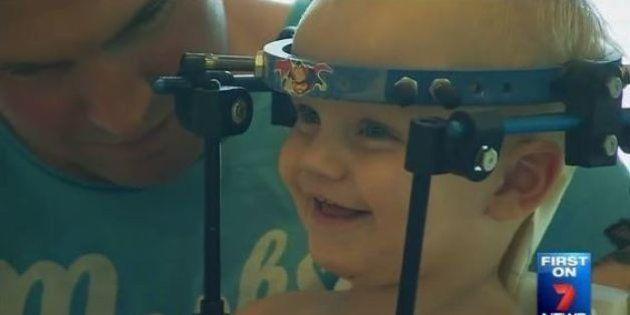 Médicos conseguem reconectar cabeça de bebê após 'decapitação