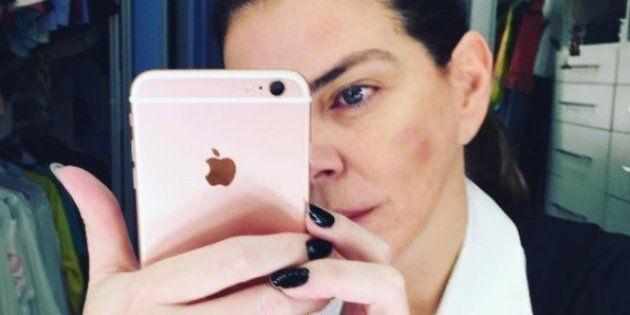 Após caso de Luiza Brunet, atriz Gisele Fraga denuncia violência doméstica: 'Na época tive medo de
