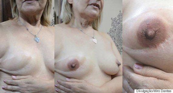 Tatuadores fazem redesenho do mamilo gratuitamente para vítimas do câncer de