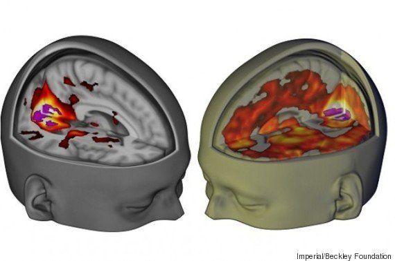 Curioso e livre... Segundo pesquisa, LSD torna o cérebro semelhante ao de um
