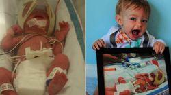 Estas fotos de antes e depois mostram como bebês prematuros chegam