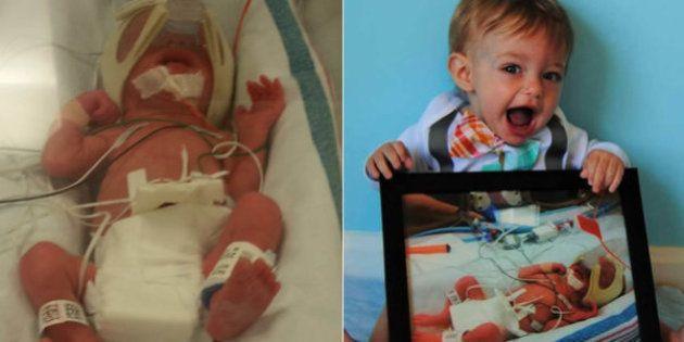 Bebês prematuros: Estas lindas imagens mostram como eles chegam longe