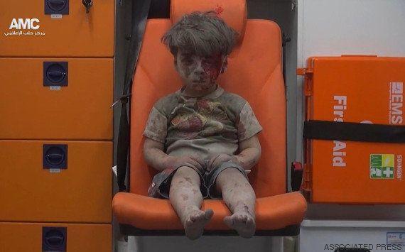 Omran Daqneesh: Esta é a face mais cruel da guerra da Síria. Mas não é a
