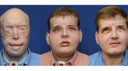 Após um ano, homem com rosto transplantado volta a
