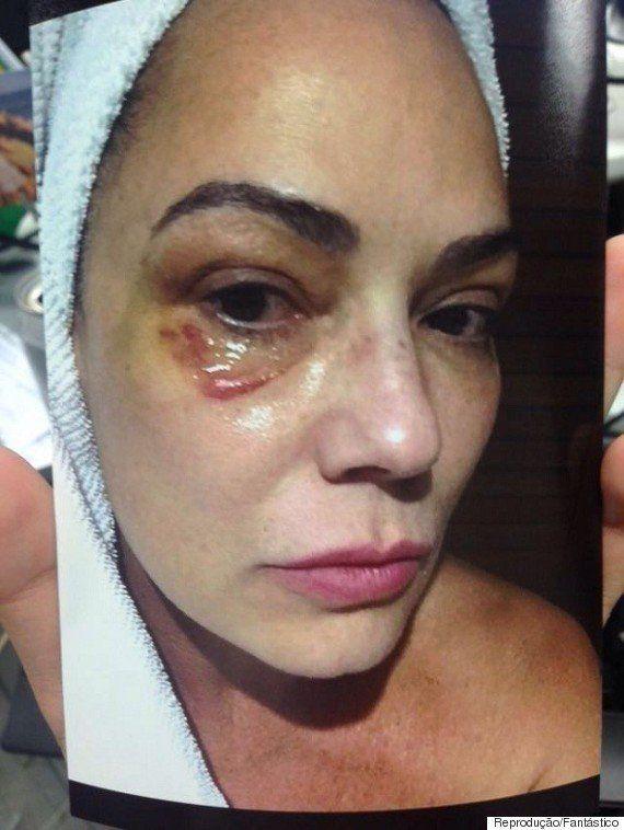 Luiza Brunet fala sobre violência sofrida em entrevista à Claudia: 'É duro criar coragem e pôr um ponto