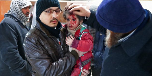 A Syrian child reacts at a makeshift hospital in the rebel-held town of Douma, on the eastern outskirts...