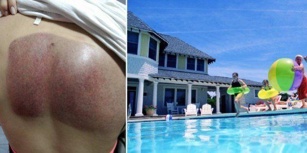 Mulher desabafa sobre acidente na piscina e faz alerta para o
