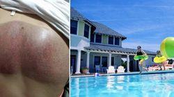 Mulher desabafa sobre acidente em piscina e faz alerta para o