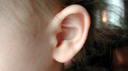 A chamada 'neuropatia auditiva' e o mistério da audição do