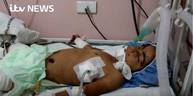 Menina síria morre aos 4 anos após confundir bomba com