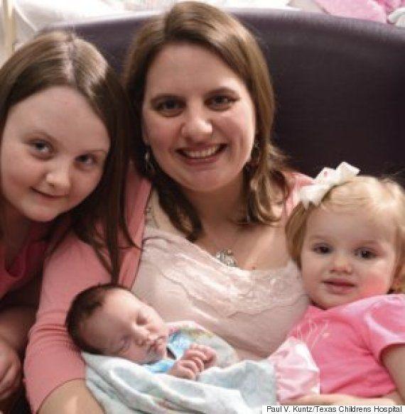 Bebê passa por cirurgia dentro do útero para retirar tumor. Entenda como isso é