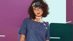 Representatividade importa, sim! Esta modelo com vitiligo é nova estrela de campanha da
