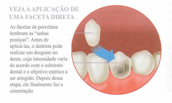 As lentes de contato e os procedimentos da moda   HuffPost Brasil 0769cac3d4