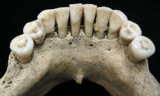 1천년 전 치아에서 중세 유럽 여성의 숨겨진 일상이