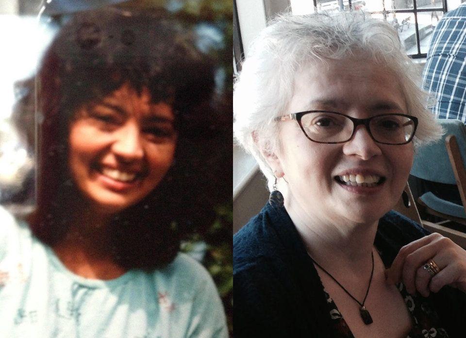 Früher war Paulas Haut dunkel – wegen ihrer Krankheit wurde sie immer
