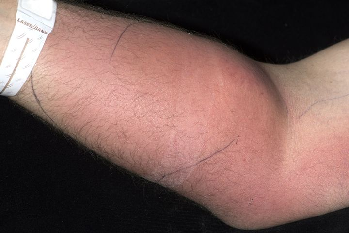 Cellulitis and edema of the man's right forearm.