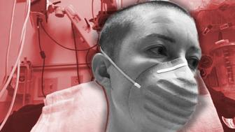 Hysterectomy illo