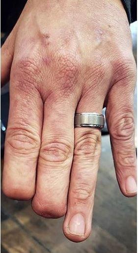 Απέκτησε ξανά τα δάχτυλά του μέσω... τατουάζ -Το αποτέλεσμα είναι