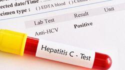 Hépatite C: 15 millions de nouvelles infections et 1,5 million de décès évitables d'ici