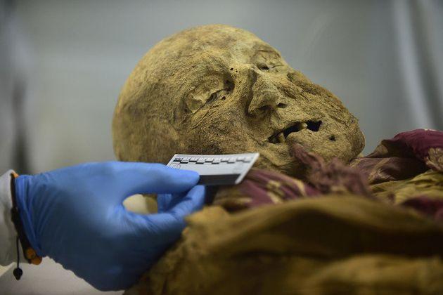 Une momie d'Equateur, clé pour savoir comment une grave maladie a atteint