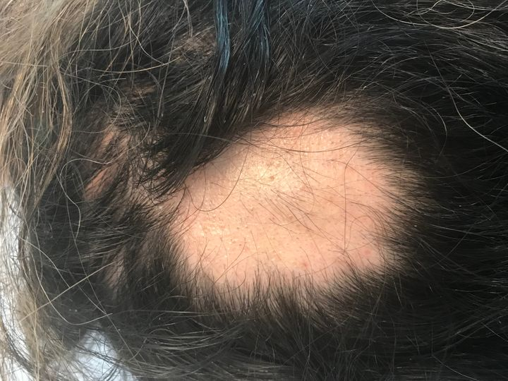 Wong's first bald spot, found in February 2018, was a shock to her.