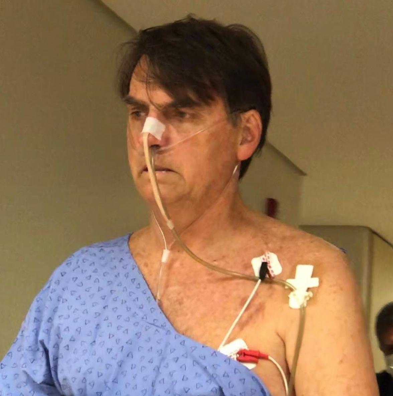 Bolsonaro teve febre e está com pneumonia, diz