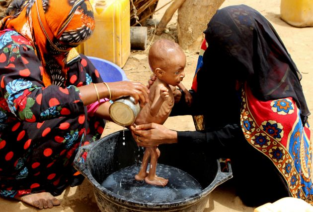 Στη Υεμένη πεθαίνουν από την ασιτία αλλά τα σιτηρά σαπίζουν στις