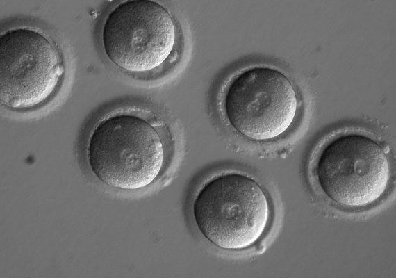 CRISPRにより修正された変異