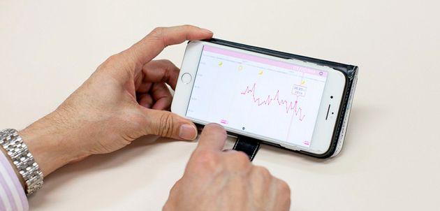 基礎体温と生理日を記録できる「カラダのキモチ」アプリは、約1カ月間記録を続けると生理周期がわかる。記録したデータをもとに先生に診てもらう。
