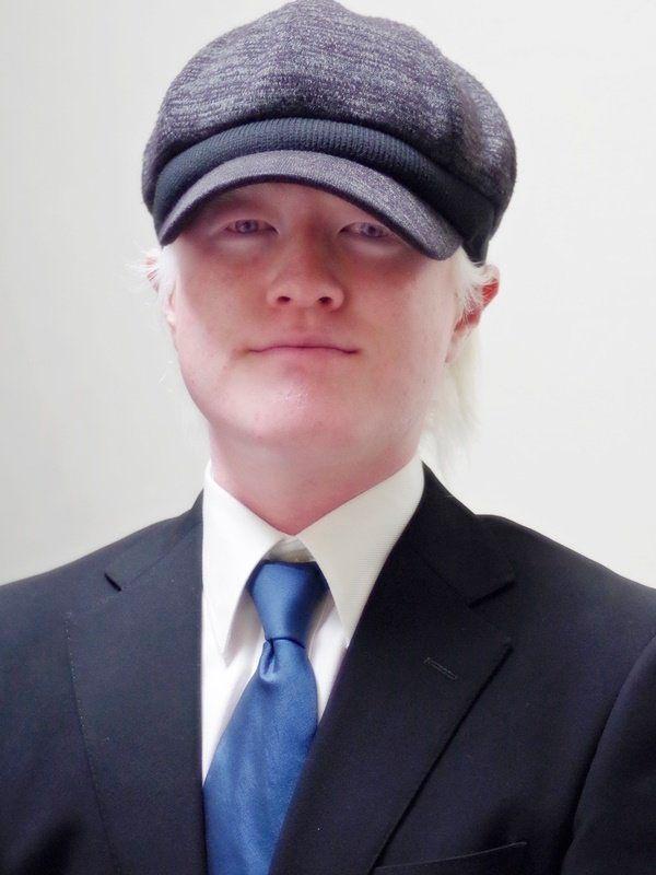 アルビノでも帽子をかぶってるのはルール違反なんだよねえ
