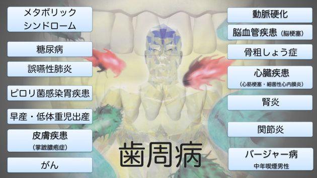 歯周病は「二重の意味で怖い」。専門医が指摘、結果的に早産になる可能性も