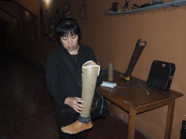 ルワンダでの義足製作には、様々な困難が。
