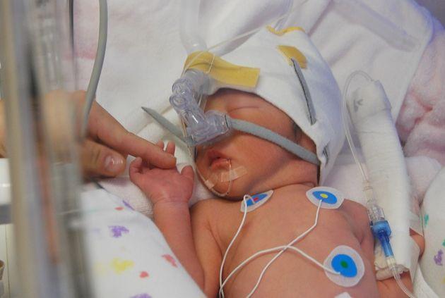 赤ちゃんは呼吸が安定していなかったので、保育器の酸素濃度を高くし、また鼻に管を通し、酸素注入をしました。